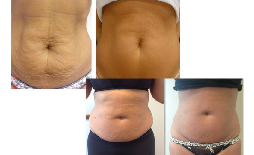 cavitation-before-after-01[1]