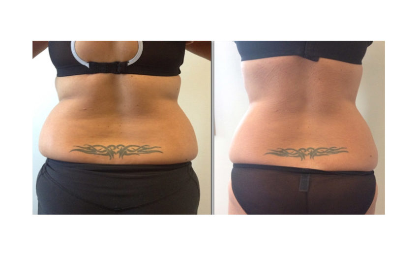 cavitation-before-after-04[1]
