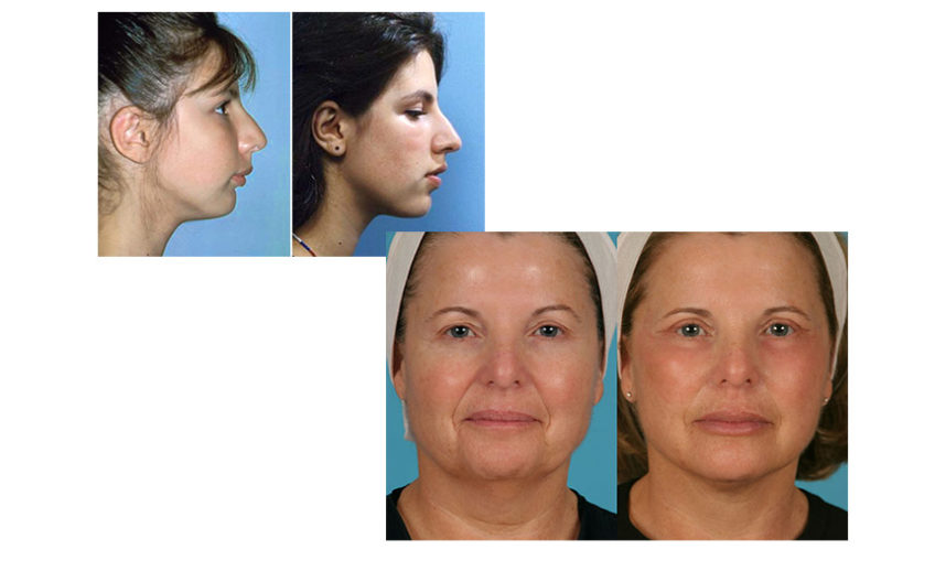 facelift-before-after-03[1]